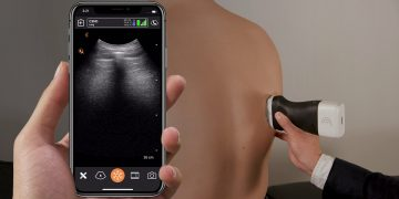 UBC researchers join with partners to develop portable ultrasound scanner network for COVID-19