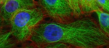 Scientists obtain real-time look at how cancers evolve